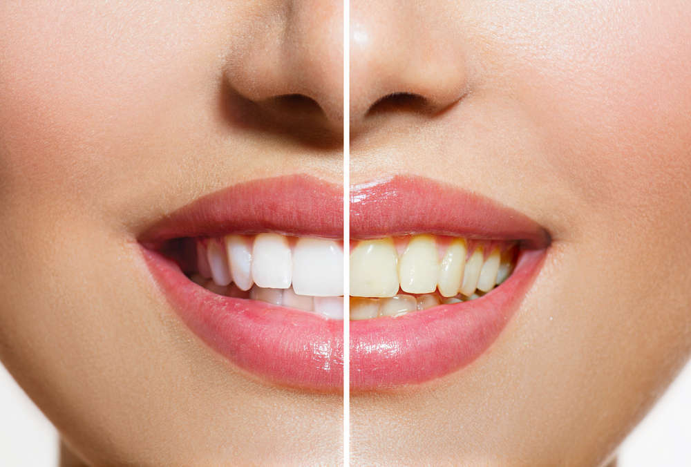 Cuida tus dientes con estos tratamientos