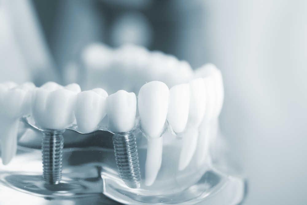 Consejos básicos para cuidar los implantes dentales